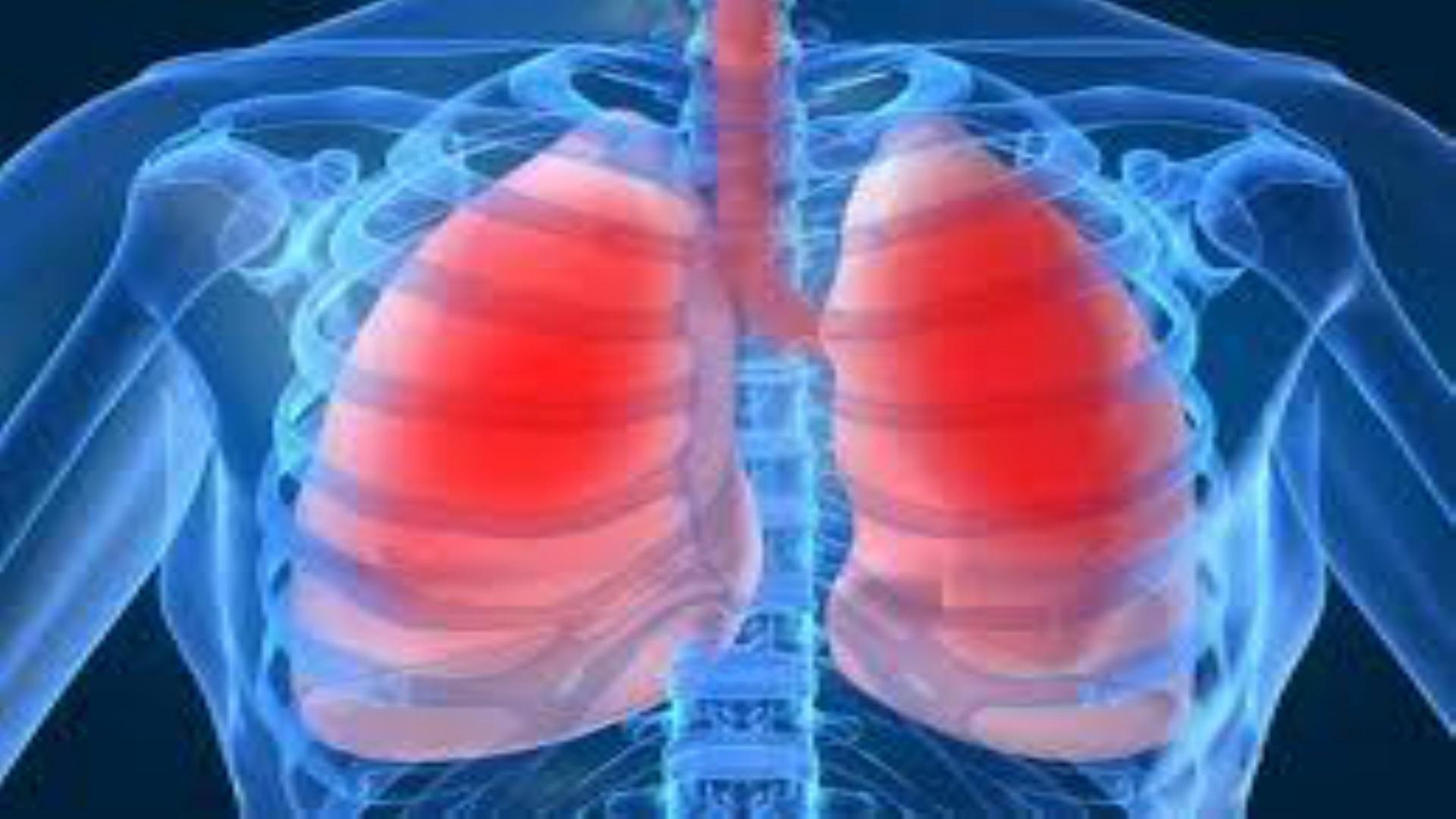 Fysiotherapie Ridderkerk: Oefengroep COPD