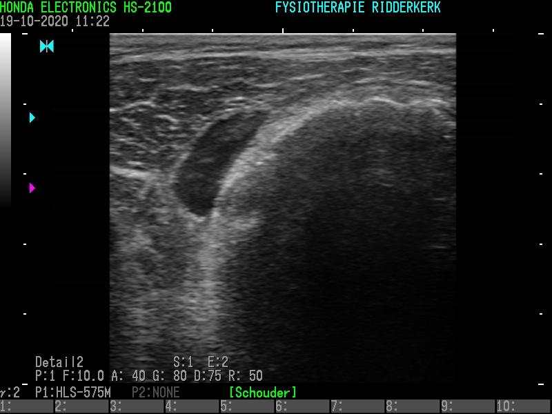 Fysiotherapie Ridderkerk: Echografie